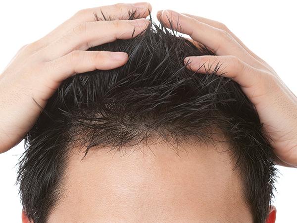 AGA【男性型脱毛症】症状について